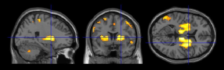 Cross-sectional brain slices showing a reduced brain connectivity (eigenvector centrality) in a group of 32 Parkinson's disease patients with levodopa medication (color-coded in orange/yellow, T>2.45). Using eigenvector centrality, major hubs can be detected within a functional network. A reduced eigenvector centrality in the striatum is due to a reduced functional connectivity between striatum and many other brain regions.