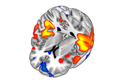 Methods and Concepts for fMRI of the Human Brain