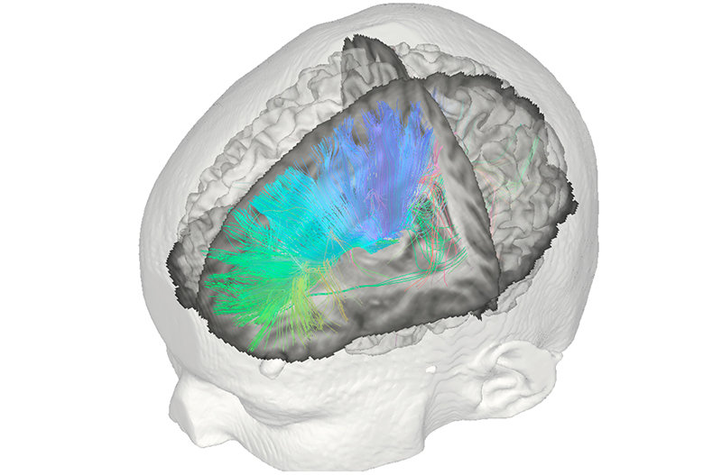 "In this module, students are taught how innovative questions can be asked and how state-of-the-art techniques can be used in the attempt to understand the brain both in its normal and diseased state. The ""classical"" anatomical way to study the brain's microstructure by cutting and staining postmortem brains is becoming increasingly complemented by non-invasive neuroimaging techniques used in vivo. Current research draws on powerful techniques such as functional and structural MRI, EEG, MEG, and NIRS. The teaching part of this module covers the foundations of Neuroscience, sensory and motor systems, brain and behaviour, and psychiatric and neurological disorders of the brain."