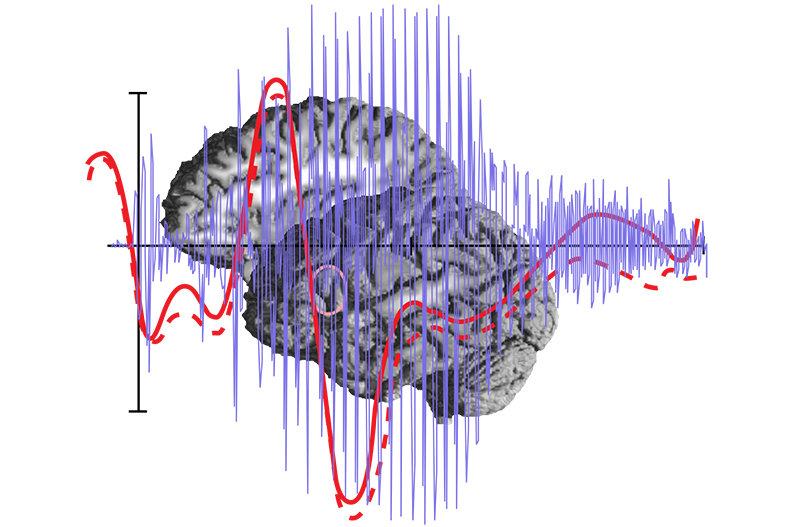 This module focuses on the neural basis of language and communication processing in the human brain. Researchers from the field of psychology, linguistics and neurology provide students with a unique opportunity to investigate auditory cognition as well as speech and language processing from both an experimental and a theoretical perspective. We provide strong methodological support, utilising behavioural and electrophysiological methods (M/EEG) as well as functional and structural neuroimaging techniques (fMRI, fNIRS, DTI). These methods are complemented by state-of-the-art non-invasive brain stimulation approaches. Cutting-edge multivariate tools are used to provide insight into neural dynamics, activity and functional as well as structural interactions. Leading researchers of the respective fields are regularly invited to Leipzig to present and discuss their work. The teaching part of this module covers courses on hearing, psycholinguistics, the neural basis of language comprehension and production, emotional speech comprehension, linguistic topology, and understanding typological distribution.