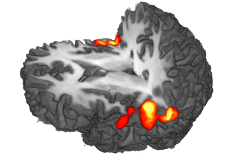 Projects in this module typically focus on the physical principles of modern neuroimaging techniques including RF technology, image processing strategies, and EEG/MEG source analysis, on biophysical tissue properties and their relation to microstructure and function, as well as on computational neuroscience and modelling of cortical networks. Experimentally, these efforts are supported through access to cutting-edge imaging technology, including a state-of-the-art 7T whole-body MRI scanner, a 3T scanner with 300mT/m high-performance gradients or a 306-channel MEG system. Candidates should have a very good master's degree, preferably in physics or, alternatively, in physical chemistry, computer sciences, biomedical or electrical engineering or a similar degree of equivalent academic level. A genuine interest in developing novel biomedical imaging or neuromodeling should motivate your application.  Good programming skills, preferably with experience in MATLAB, C++ or Python, are essential.